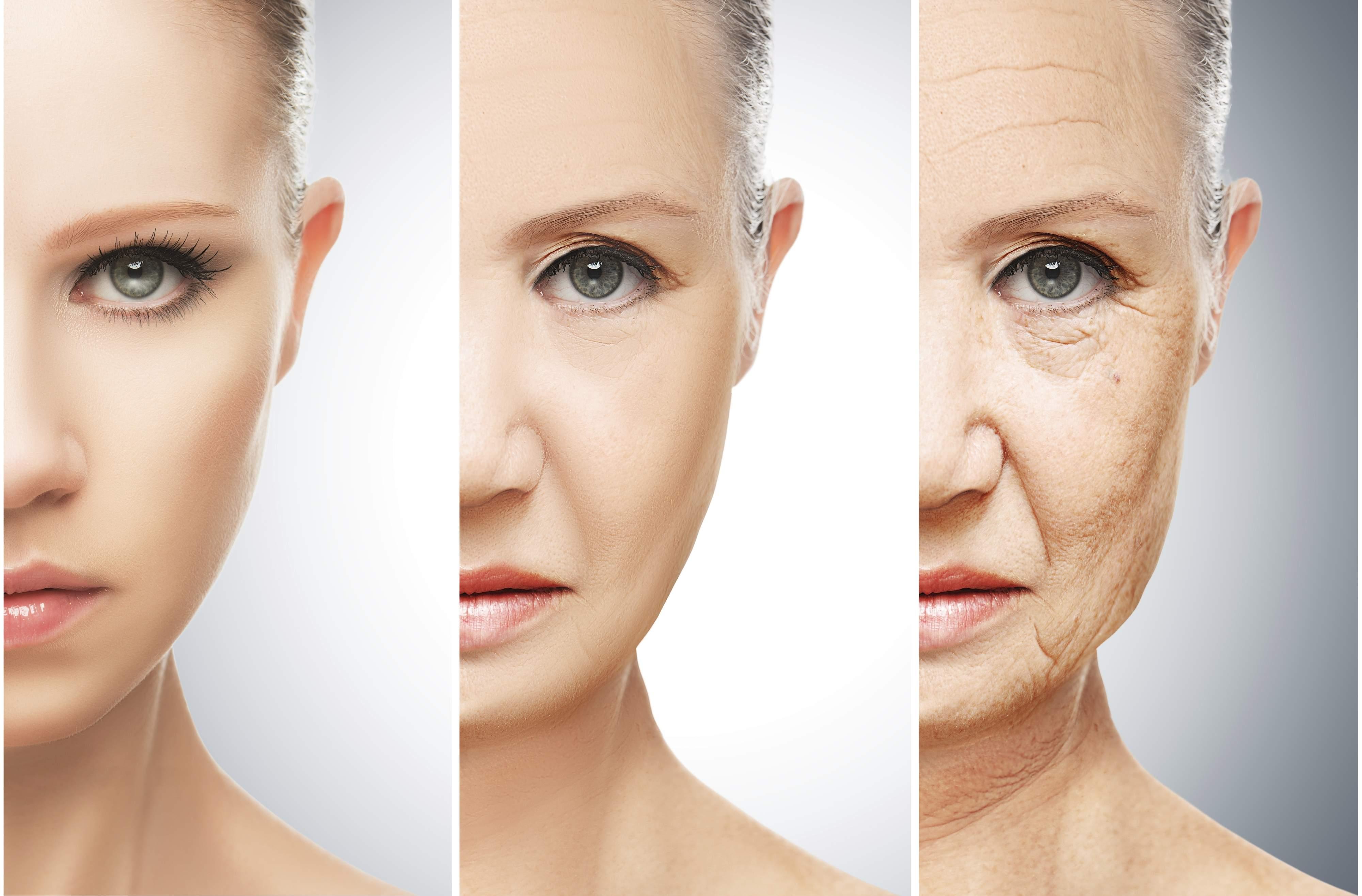 Radiesse Aging