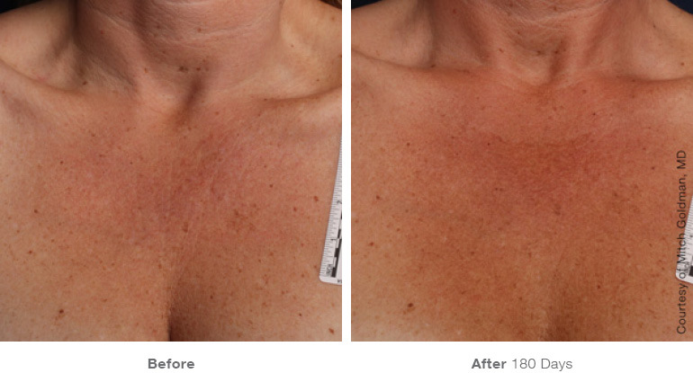 ULTHERAPY  DECOLLETAGE